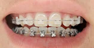 il existe différents types d'appareil d'orthodontie pour corriger vos problemes