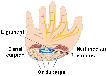 Schema en coupe du poignet avec le canal carpien