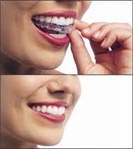 Comment avoir un beau sourire avec des dents alignées avec le traitement invisalign